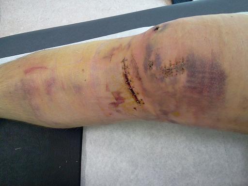 Bilder nach der Knie-OP